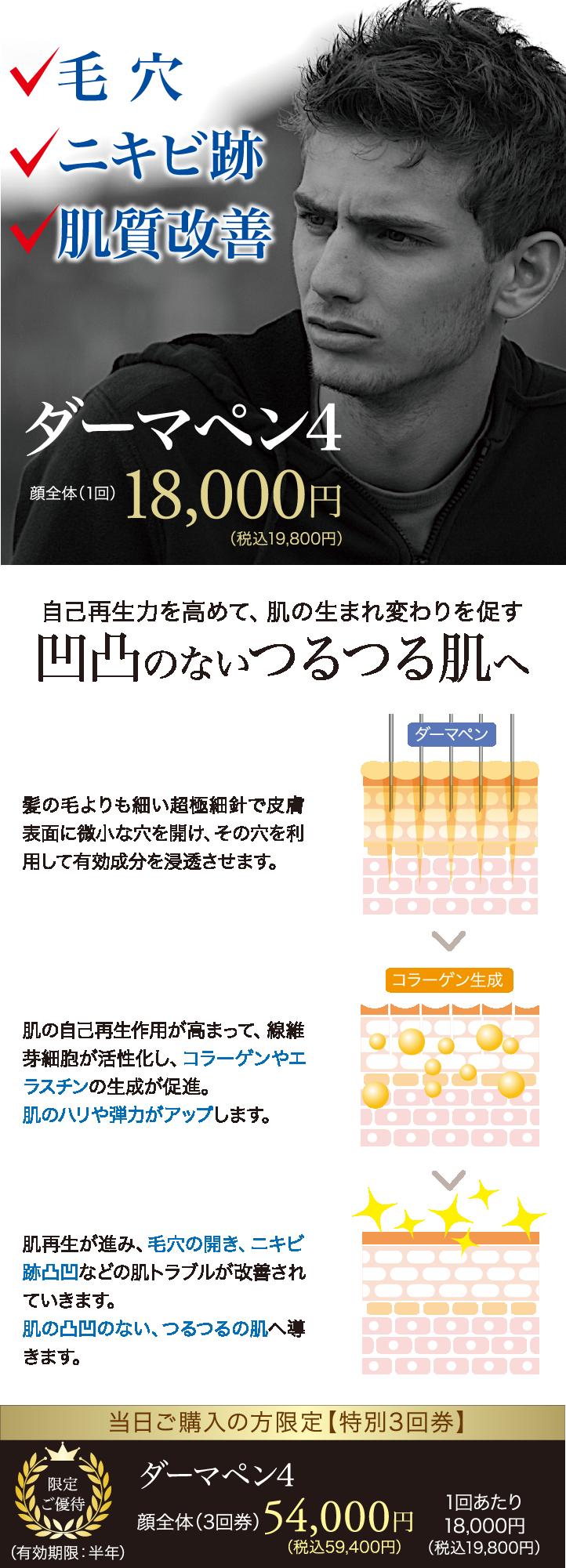 毛穴・ニキビ跡治療【ダーマペン4】