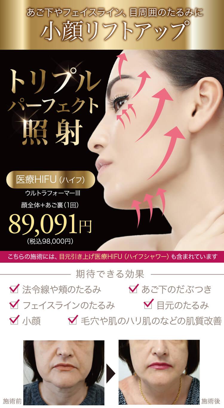 医療HIFU(ハイフ)【ウルトラフォーマーIII】小顔リフトアップたるみ改善